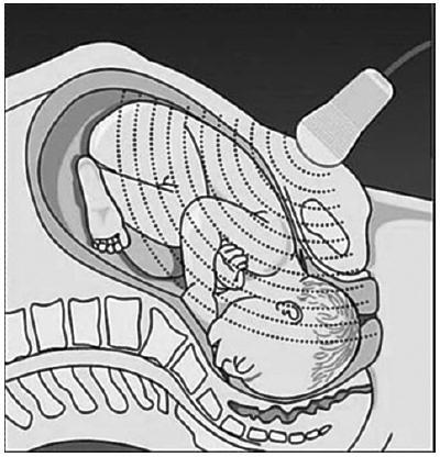 Suprapubické ultrazvukové vyšetření – schéma (obr.1–6 a 9–11 převzaty od prof. Pilu [4, 6])