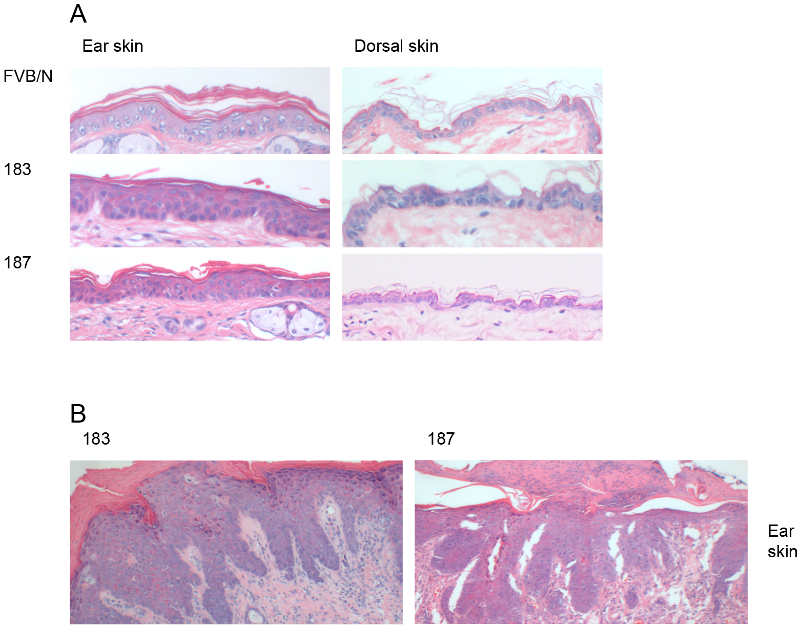 Histological analysis of skin specimens from wild-type FVB/N and Tg mouse lines.