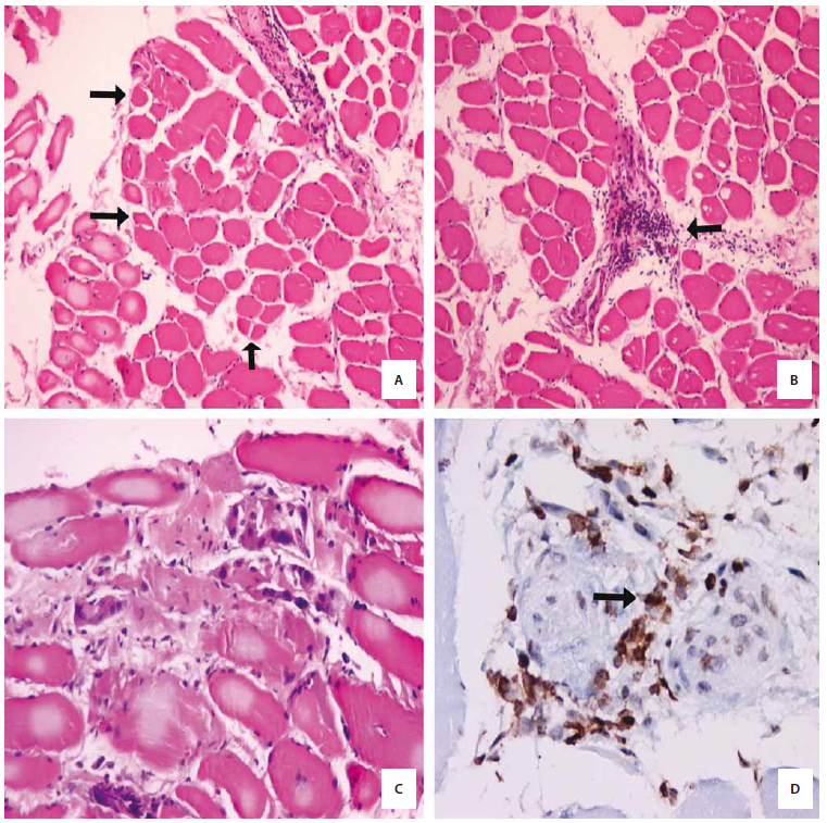 Fig. 2. A) Atrophic muscle fibers at the periphery of the fascicule (arrows). H&E X 100; B) Lymphocyte infiltrations are mainly perivascular rather than endomysial in a biopsy specimen (arrows). H&E X 100; C) Scattered degenerated muscle fibres were observed (asterixes). H&E X 200; D) Infiltrated lymphocytes showed immunoreaction to CD45 antibody (arrows). CD45 X 400.