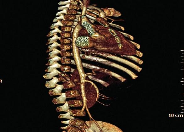 Spondylodiscitída Th12–L1 so zbortením tiel, rekonštrukčné snímky. Fig. 5. Spondylodiscitis Th12-L1 with collapse of vertebras, remodelling scan.