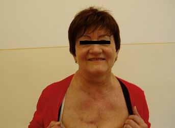Obr. 3B. Foto pacientky z prípadu 2 po podaní chemoterapie.