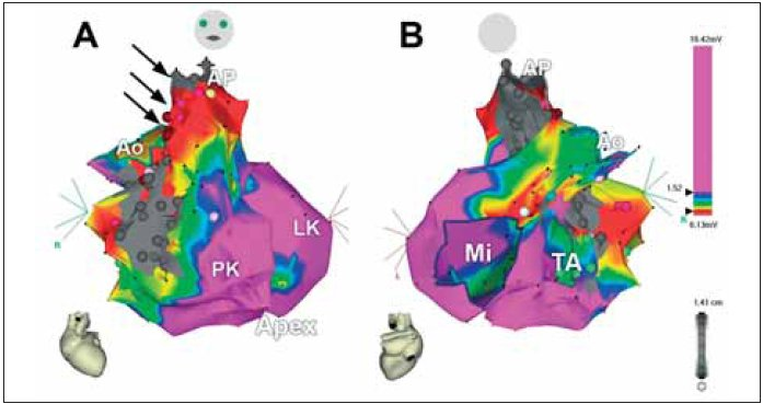 3rozměrná voltážová elektroanatomická mapa obou komor u nemocného s KT po radiální korekci Fallotovy tetralogie. A. Pohled zepředu, B. Pohled zezadu. Šedá barva na volné stěně pravé komory označuje jizvu po ventrikulotomii a rozšíření výtokového traktu pravé komory záplatou, šedá barva, nahoře pod chlopní je vidět šedý okrsek odpovídající záplatě komorového defektu. Šipky označují kanál mezi oběma bariérami, který je uložen v jizevnaté tkáni (červená barva) a který tvořil istmus pro arytmii typu reentry. Katetrizační ablace v tomto kanálu vedla k odstranění indukovatelnosti KT.