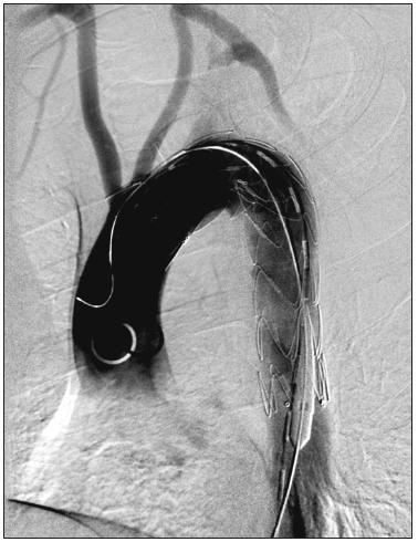 54-ročný muž s aneuryzmatickou dilatáciou anomálne odstupujúcej arteria subelavia dextra (arteria lusoria). Stav po implantácii hrudného stentgraftu do oblasti aortálneho oblúka. Digitálna subtrakčná angiografia aortálneho oblúka a supraaortových vetiev. Fig. 4. A 54-year old male with aneurysmal dilatation of an abnormal arteria subclavia dextra (arteria lusoria). Following thoracic stentgraft implantation into the aortic arch region. Digital subtraction angiography of the aortic arch and supraaortic branches.