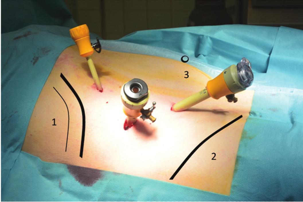 Operačná poloha u LS (1 – costae, 2 – crista iliaca, 3 – umbilicus) Fig. 1. Surgery position in lumbar sympathectomy (1 – costae, 2 – crista iliaca, 3 – umbilicus)