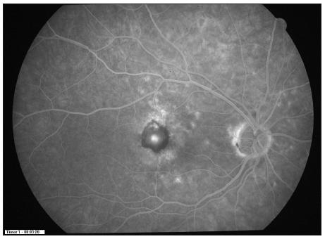 FAG ve 12 měs. sledování (pacient č.22 po PDT a 2 aplikacích ranibizumabu)