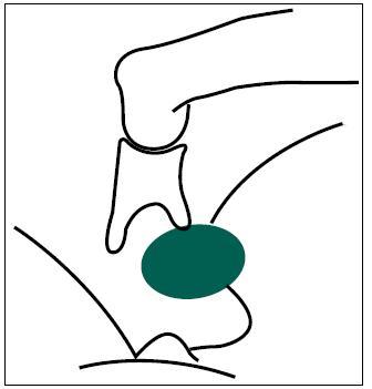 Obr. 2b. Schéma peroperačního nálezu malformace třmínku a výhřezu lícního nervu (zelený).