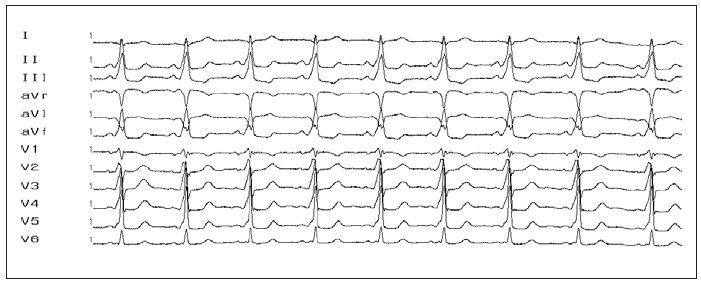 12svodové EKG s obrazem preexcitace. Obraz preexcitace (vlna delta, krátký PQ-interval a široký QRS-komplex) u pacienta s akcesorní AV-spojkou na levé volné stěně (negativní delta-vlna ve svodech I, aVL, obraz pseudoblokády pravého Tawarova raménka).
