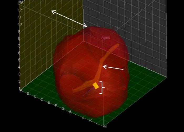 Zobrazení prostaty z levé strany. Karcinom je zobrazen jako žlutý kosočtverec, opět je zobrazena močová trubice.