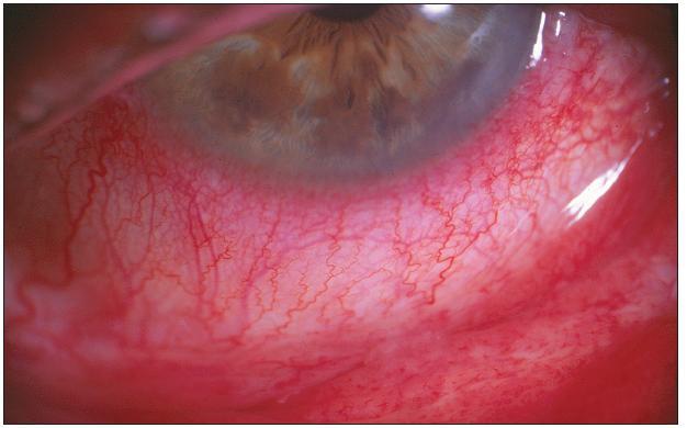 Pacient č. 2: výrazný klinický nález – výrazné zduření dolního fornixu a vinutost cév bulbární spojivky s maximální hyperémií (přítomnost perikorneální injekce)