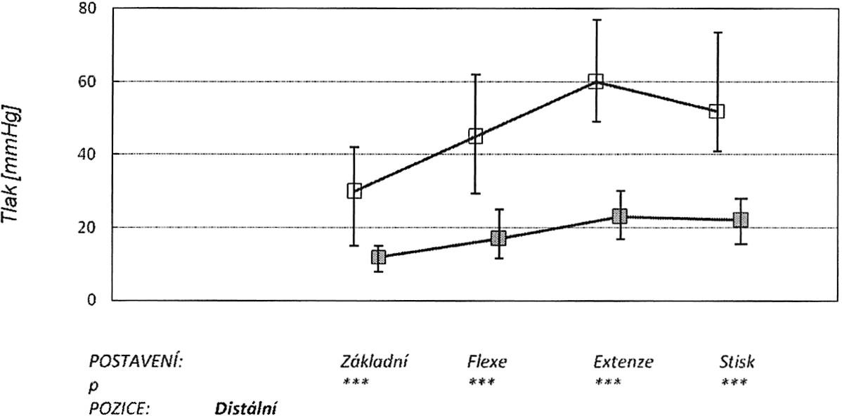 V grafu jsou znázorněny: medián, 25. a 75. percentil v úrovni distální části kanálu v různých zátěžových pozicích ruky (základní neutrální postavení, maximální pasivní flexe, extenze a stisk). Horní křivka znázorňuje tlaky před protětím ligamenta, dolní po protětí. Graph 3. The graph depicts: the median, the 25th and 75th percentiles at the distal part of the tunnel during various stress positions of the hand (a basic neutral position, the maximum passive flexion, extension and a hand grip). The upper curve depicts pressure measurements prior to the ligament section, while the lower one those after the section procedure.