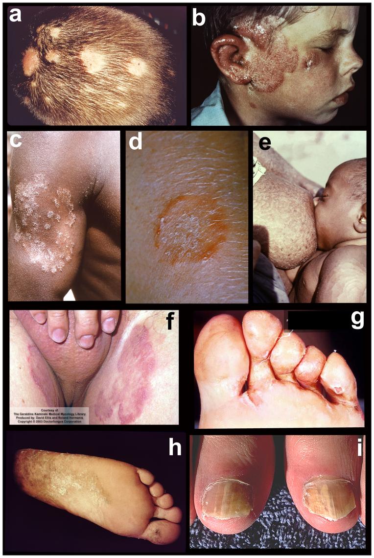 Tineas throughout the body.