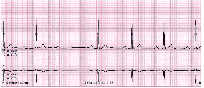 Záznam AV-blokády II. stupně Wenckebachova typu v nočních hodinách při holterovské monitoraci EKG (48letý sportovec, jehož EKG-křivka je na obr. 1).