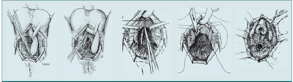 Progresivní perineální rekonstrukce pomocí anastomózy.