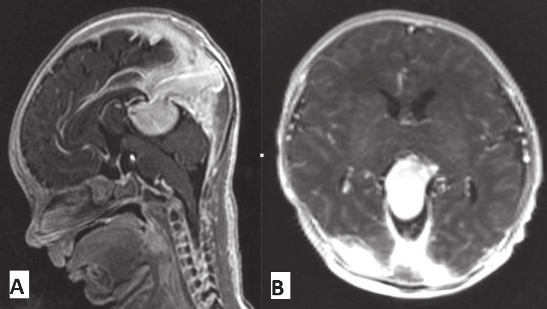 Obr. 4. MR vyšetrenie mozgu novorodenca s malformáciou vena Galeni, kazuistika 2.
