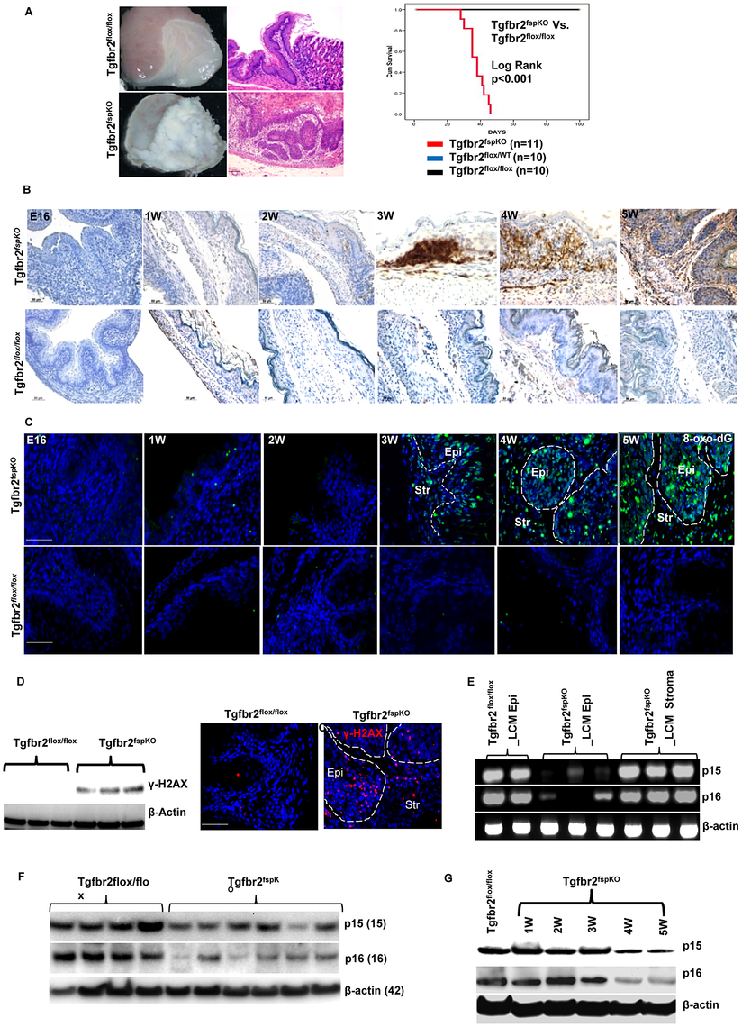 Stromal deletion of Tgfbr2 promotes inflammation-induced DNA damage and loss of <i>p15 and p16</i>.