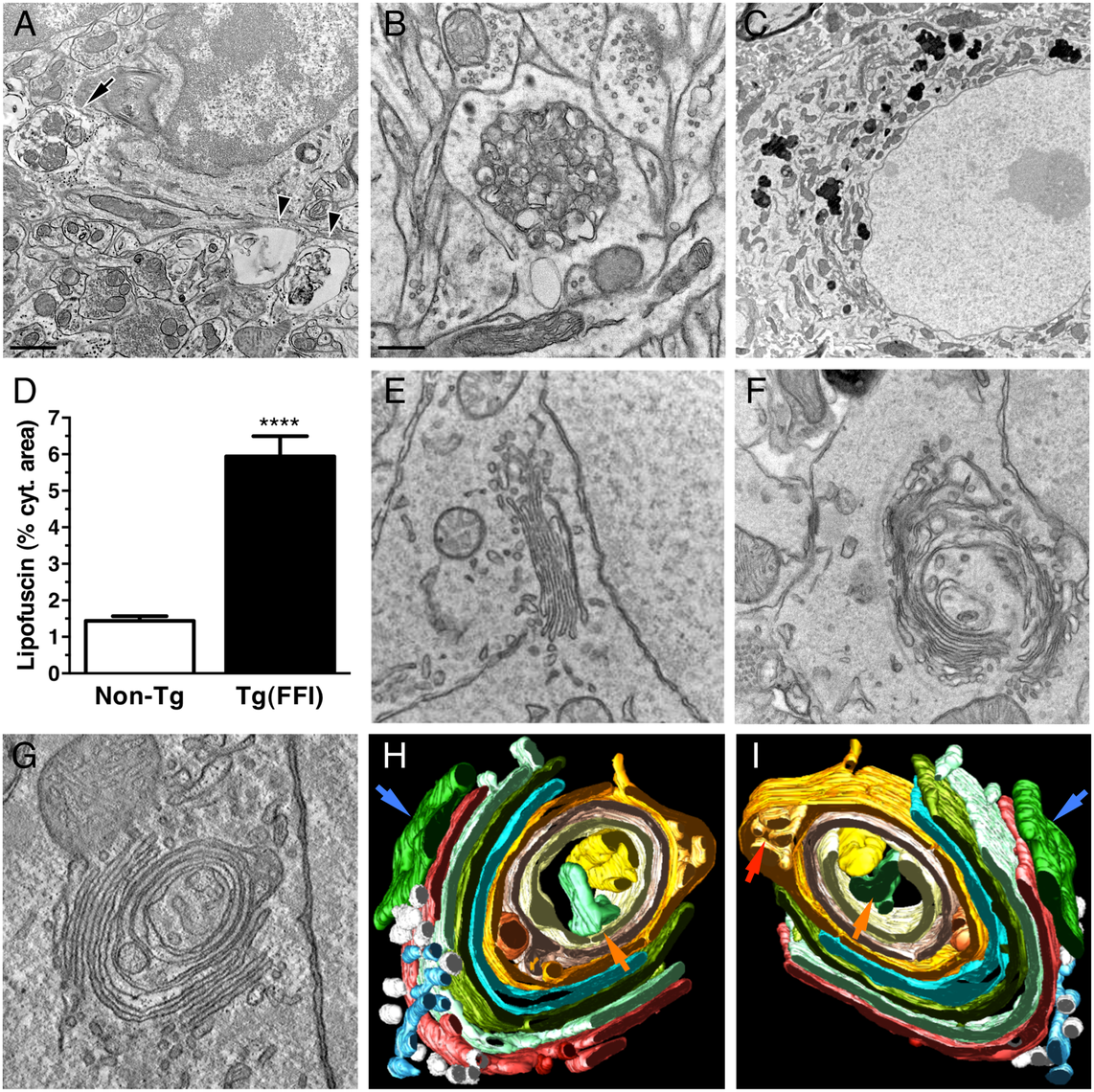 Ultrastructural abnormalities in Tg(FFI) neurons.