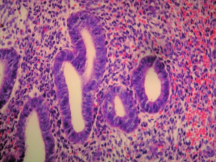 Detailný záber na endometriálne žliazky a endometriálnu strómu s charakteristickým intersticiálnym čerstvým krvácaním, HE 400x Fig. 4: Endometrial tissue, cells and stroma with characteristic interstitial bleeding, detailed view, HE 400x