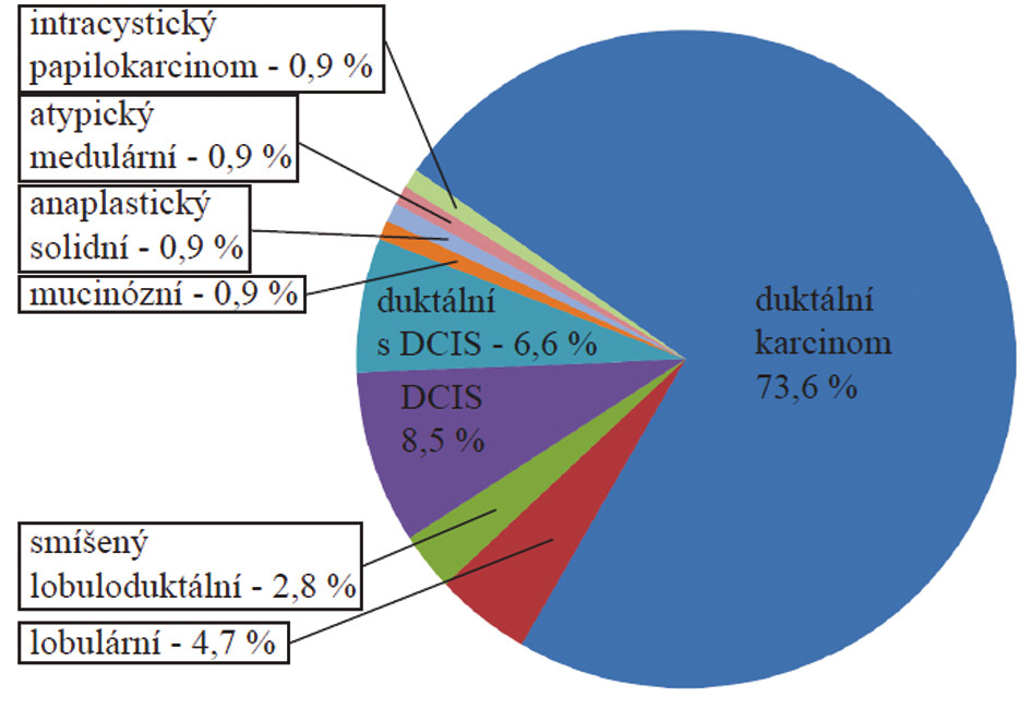 Histologické typy karcinomu prsu