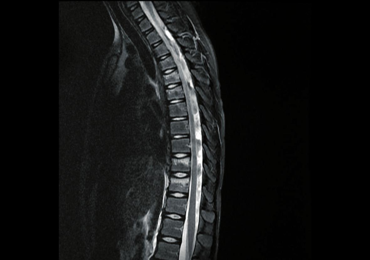 MR vyšetření – zlomenina obratlového těla v oblasti Th3-6 a Th10-11