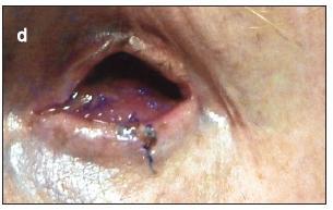 Obr. 2d. Prípad č. 2. Stav transplantátu – amniovej membrány a postavenie dolného viečka 1 týždeň po operácii