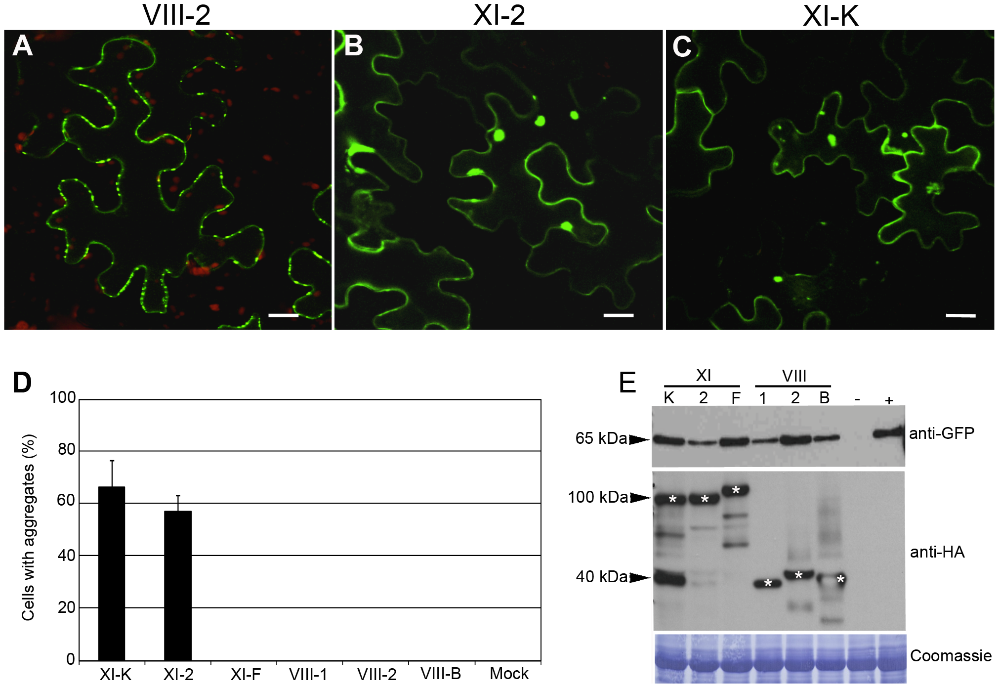 Transient co-expression of PDLP1:GFP and myosin XI-K or XI-2 tails leads to the PDLP1:GFP mislocalization and aggregation.