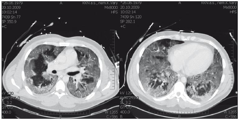 Vstupní CT nález u nemocného s chřipkou H1N1 s hypoxemickým respiračním selháním – nejtěžším postižením plic.
