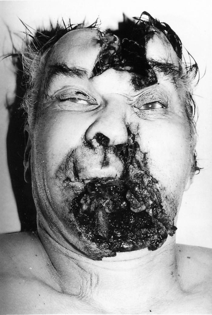 Rozsáhlé mutilující poranění hlavy s místem vstřelu pod bradou. Sebevražda jednotnou střelou typu S-BALL (Sellier&Bellot<sup>©</sup>) při střelbě z absolutní blízkosti