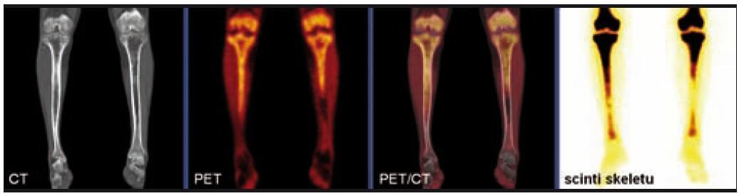 Srovnání nálezů na CT, PET a klasické kostní scintigrafii u pacienta s Erdheimovou-Chesterovou chorobou.  Na CT je patrná nepravidelná sklerotizace dřeňové dutiny obou stehenních i holenních kostí vyjma krátkého úseku střední třetiny levé tibie. V PET obrazu se zobrazila ložiska patologického hypermetabolizmu glukózy v proximálních částech obou tibií (více vpravo), kde byla zároveň popsána patologická akumulace radiofarmaka i na celotělovém scintigramu skeletu.