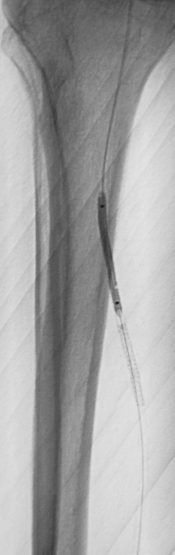 Implantovaný stent do arteria tibialis posterior na pravej dolnej končatine pre disekciu s výborným efektom Fig. 4. A stent implanted into the posterior tibial artery on the right lower extremity for its dissection, with excellent outcome