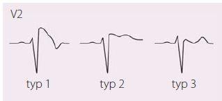 """EKG projevy Brugada syndromu, jediný """"diagnostický"""" je typ 1, tj. ST elevace ≥ 2 mm následovaná negativní vlnou bez izoelektrické nebo s minimální izoelektrickou linií, zvaný také """"Coved type""""; další dva typy nazýváme """"Saddle back"""" – typ 2 má mít výše J bod než T vlnu, typ 3 naopak. Upraveno dle [21,22]."""