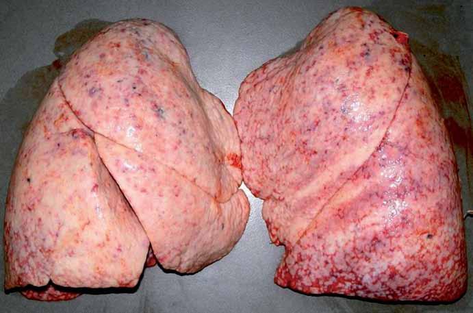 Mnohočetná infiltrace plic anaplastickým astrocytomem (pitevní fotografie).