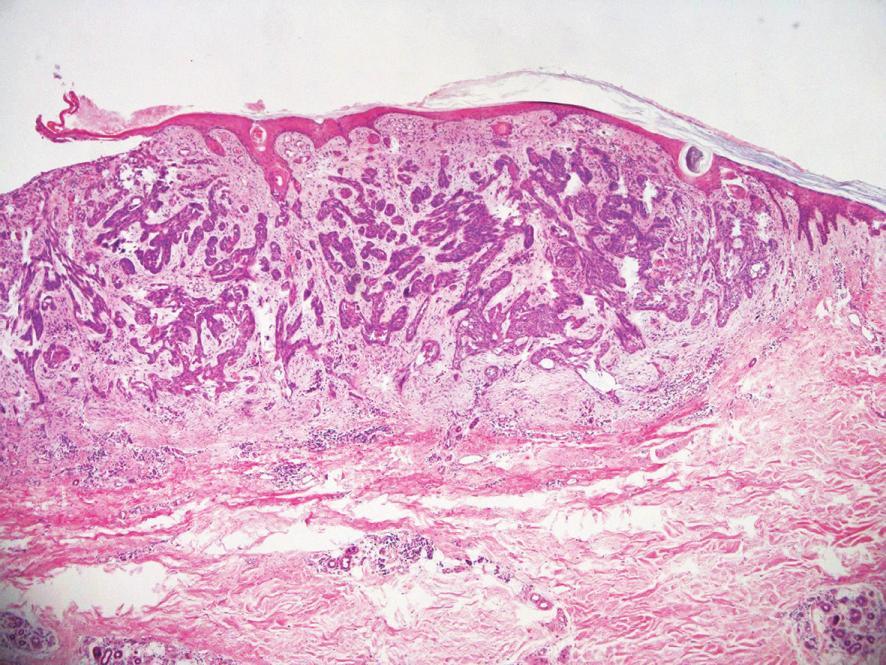 Bazalióm G 2, s infiltratívnym rastom, šírenie pod intaktnou epidermou. HE 200x