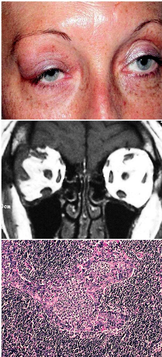a. Temporální vyklenutí horního víčka tumorem z oblasti slzné žlázy vpravo b. MR: tumorózní infiltrace slzné žlázy a jejího okolí vpravo c. Histologie:MALT-lymfom, parafin. řez, barvení hematoxylin- eosin, zvětšení 125krát