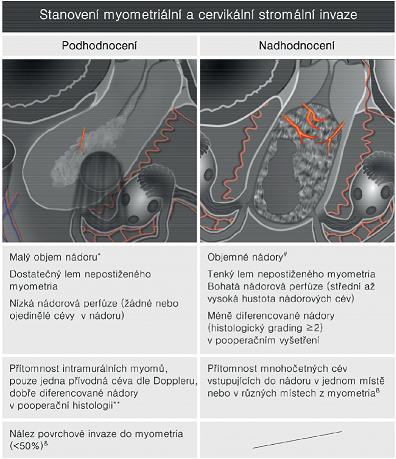 Faktory ovlivňující ultrazvukovou přesnost předoperačního stagingu u zhoubného nádoru děložního těla