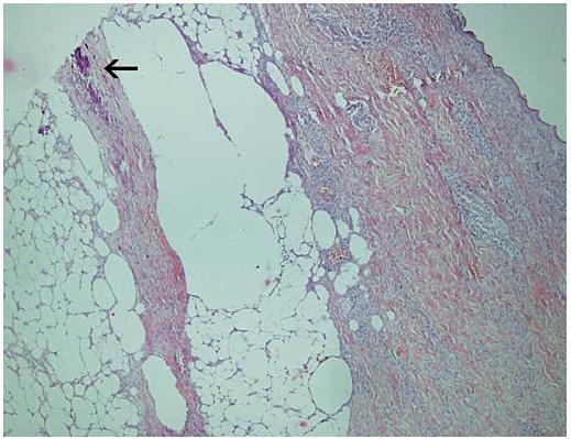Histologický nález Šipkou označeno bazofilní ložisko v septu subcutis odpovídající výrazné kalcifylaxi kolagenního vaziva, v přilehlémlobulu subcutis jsou lipofágy, v koriu jsou patrné extravazáty erytrocytů a zánětlivé infiltráty (zvětšení 40krát, barvení HE).