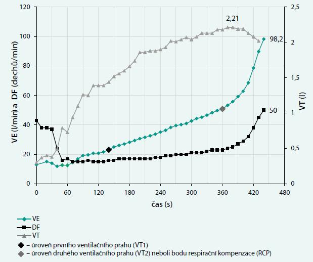 Normální průběh minutové ventilace, dechové frekvence a dechového objemu při kontinuálním vzestupu zátěže při spiroergometrickém vyšetření