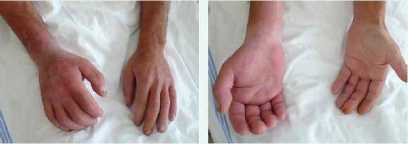 Sklerodermické postižení rukou a předloktí u nemocného se systémovou sklerodermií. Postižení je akcentováno pravostranně v souvislosti s profesním zatížením vibracemi pneumatického kladiva. Archiv autora