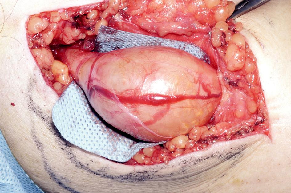 Fig. 1. Ulnar nerve schwannoma, size 6 x 4 cm