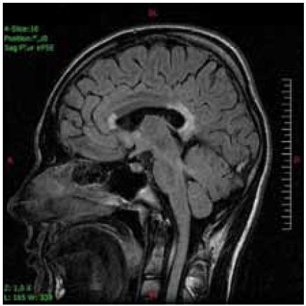 Ten istý pacient s postihnutím genu a splenium corpus callosum v T2V sagitálnej projekcii.