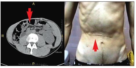 Atrofie pravého m. rectus abdominis. 29letý pacient s pooperačním poškozením interkostálních nervů Th 8–10 vpravo. Na snímku vlevo je patrná výrazná atrofie pravého m. rectus abdominis (označeno šipkami) ve srovnání s levou stranou.  Atrofie je zřejmá i při pohledu na břišní stěnu v pravém horním břišním kvadrantu (snímek vpravo).