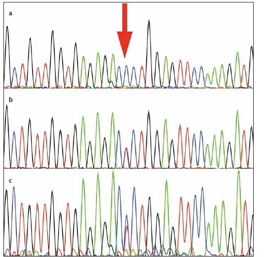 Fig. 3. Electropherogram of the patient showing the nucleotide variant at residue c.1538T>C in <i>HEXB</i> (RefSeq. NM_000521, GRCh38) (a).
