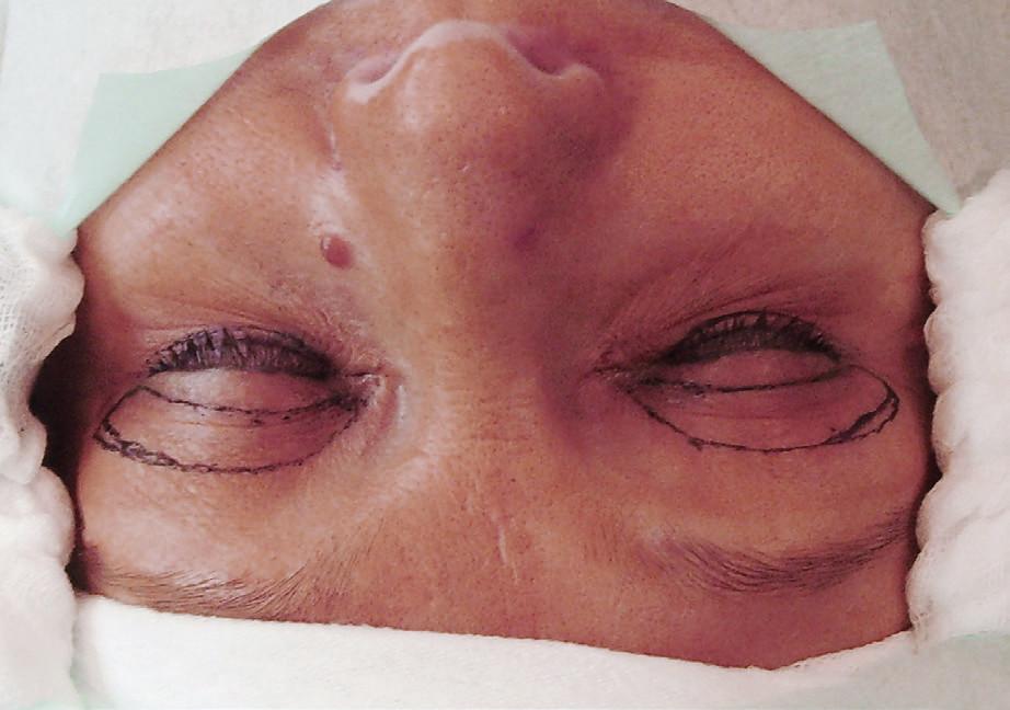 Dezinfekce operačního pole se sterilním krytím