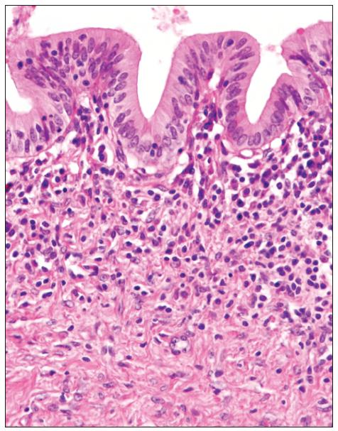 Stěna dilatovaného intrahepatálního žlučovodu se smíšenou zánětlivou infiltrací, která proniká i do slizničního epitelu. HE, zvětšeno 200? Fig. 3. The wall of dilated intrahepatic bile ducts with a mixed inflammatory infiltrate, which penetrates into the mucosal epithelium. HE, magnification 200?