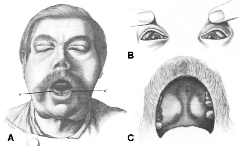 Původní pozorování J. von Mikulicz-Radeckého: Extenzivní symetrické zvětšení (A) příušních, podčelistních a sublinguálních (označeno jako a), (B) slzných a (C) patrových slinných žláz. Upraveno podle S. Ihlera a J.D. Harrisona (1).