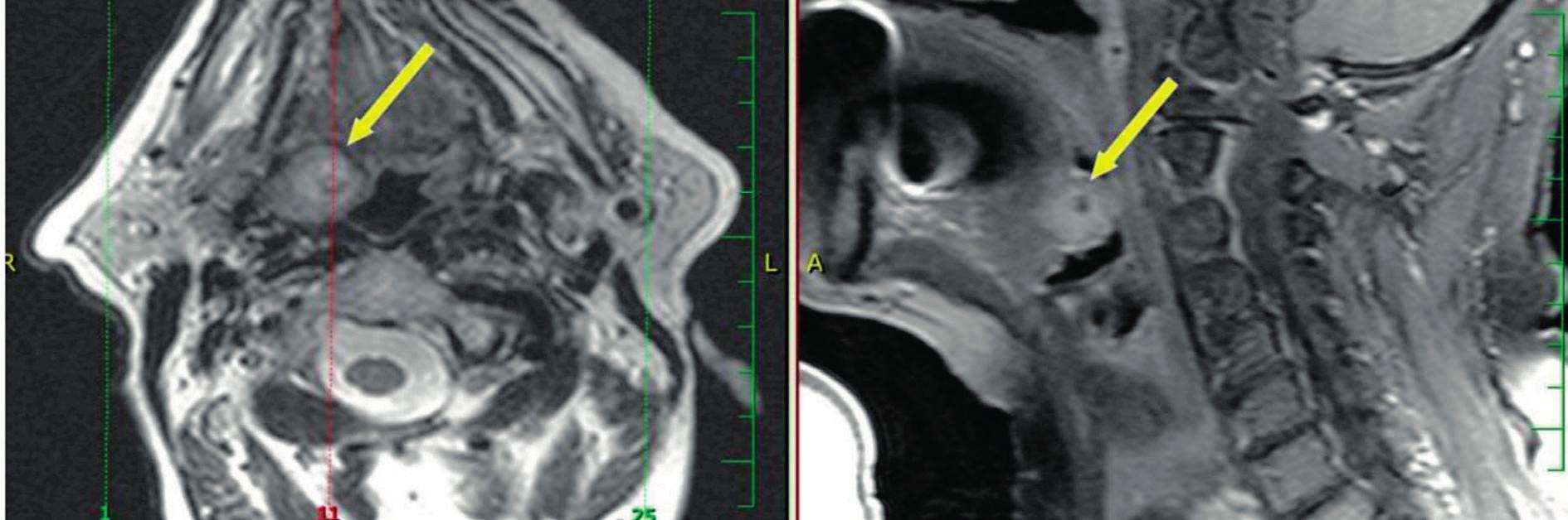 Vlevo MR T2 vážený obraz, vpravo MR T1 s potlačením signálu tuku postkontrastně - šipka ukazuje na povrchově uložený karcinom kořene jazyka stadia T1, velmi dobře přístupný pro TORS.