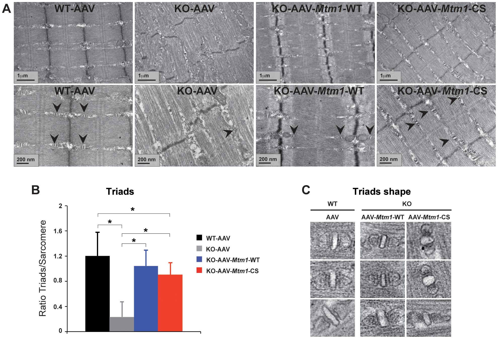Improvement of triad abnormalities present in <i>Mtm1</i>-deficient muscles with AAV-<i>Mtm1</i>-WT and AAV-<i>Mtm1</i>-CS.