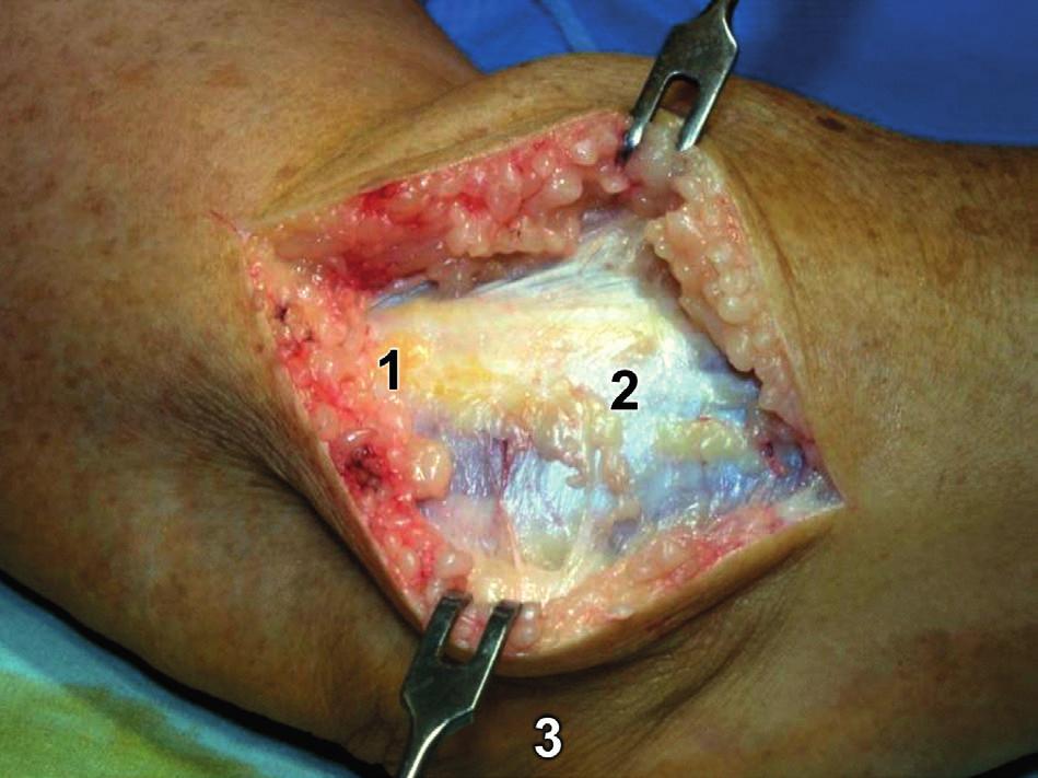 Modifikovaný Kocherův přístup – kožní řez: 1 – epicondylus lateralis humeri, 2 – fascie extenzorů, 3 – olekranon. Fig. 7: Modified Kocher approach – skin incision: 1 – lateral epicondyle of humerus, 2 – common extensor fascia, 3 – olecranon.