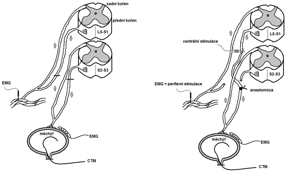 Schéma arteficiálního mikčního reflexního oblouku. Vlevo výchozí stav, vpravo po anastomóze předních kořenů Fig. 1. Scheme – artificial micturition reflex arc. Left – before surgery, right – after ventral root anastomosis