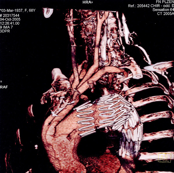 3D CTAG image of the condition at the post-operation follow up after 3 months Obr. 5. 3D CTAG obraz stavu při kontrole 3 měsíce po operaci
