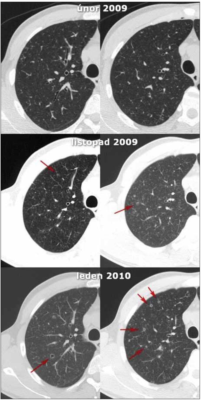 Obr. 1. Přehled HRCT skenů, detaily na pravé plicní křídlo ve dvou různých rovinách. Patrný je vývoj plicního postižení LCH, kdy z nodulárních opacit postupně vznikají cysty (označeny červenými šipkami).
